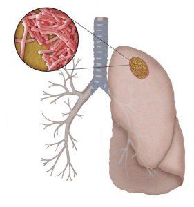 Legionelloza z zapaleniem płuc